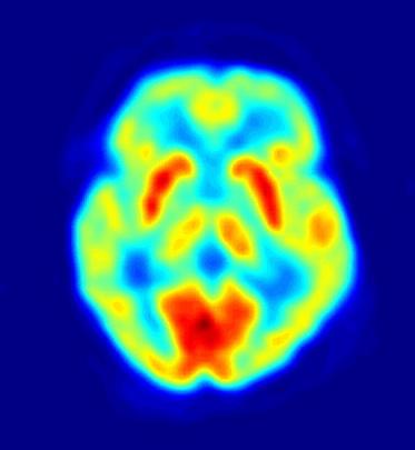 Metodología de la investigación en las Neurociencias